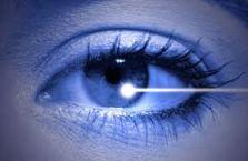 Operacion de la vista con laser