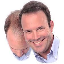 Causas reales de la caida del pelo