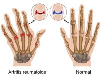artritis reumatoides