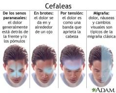 diferentes dolores cabeza