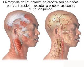 sintomas de las cefaleas